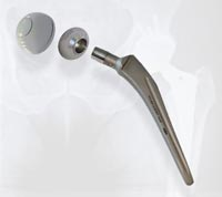 Arthroplasty Implants