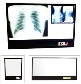 X-Ray View Box (LED)